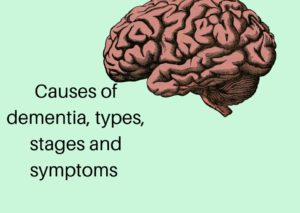 Causes of Dementia